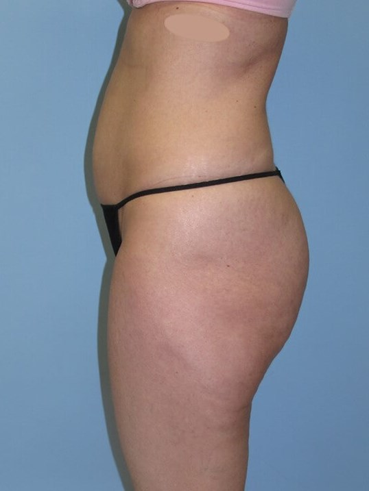 UltraShape Power & VelaShape After (Side View)