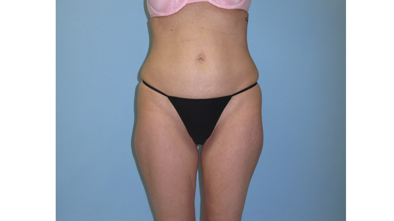 UltraShape Power & VelaShape After (Frontal View)