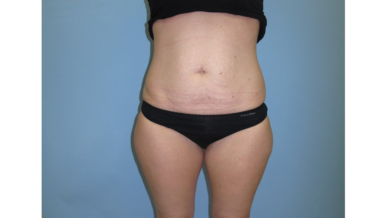 UltraShape Power & VelaShape Before (Frontal View)