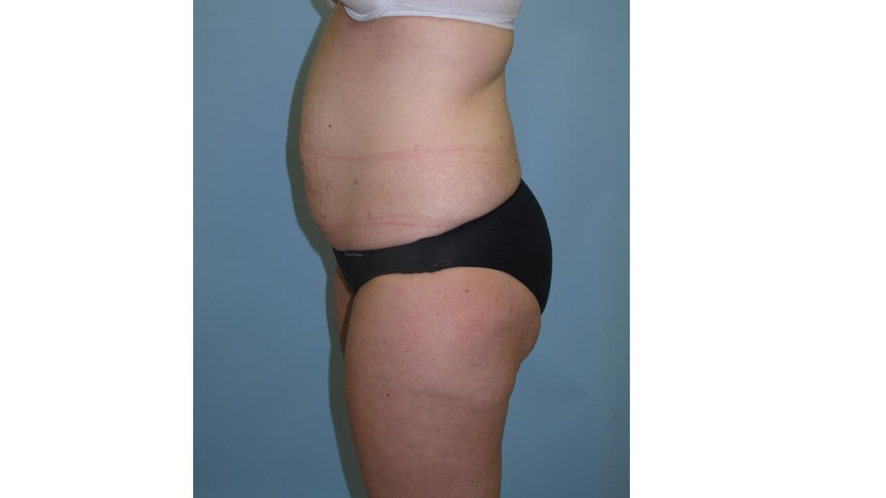 UltraShape Power & VelaShape Before (Side View)