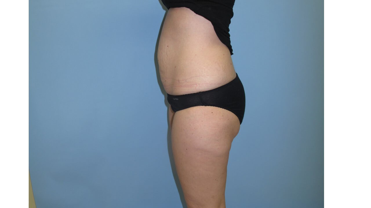 UltraShape Power VelaShape III After (Side View)