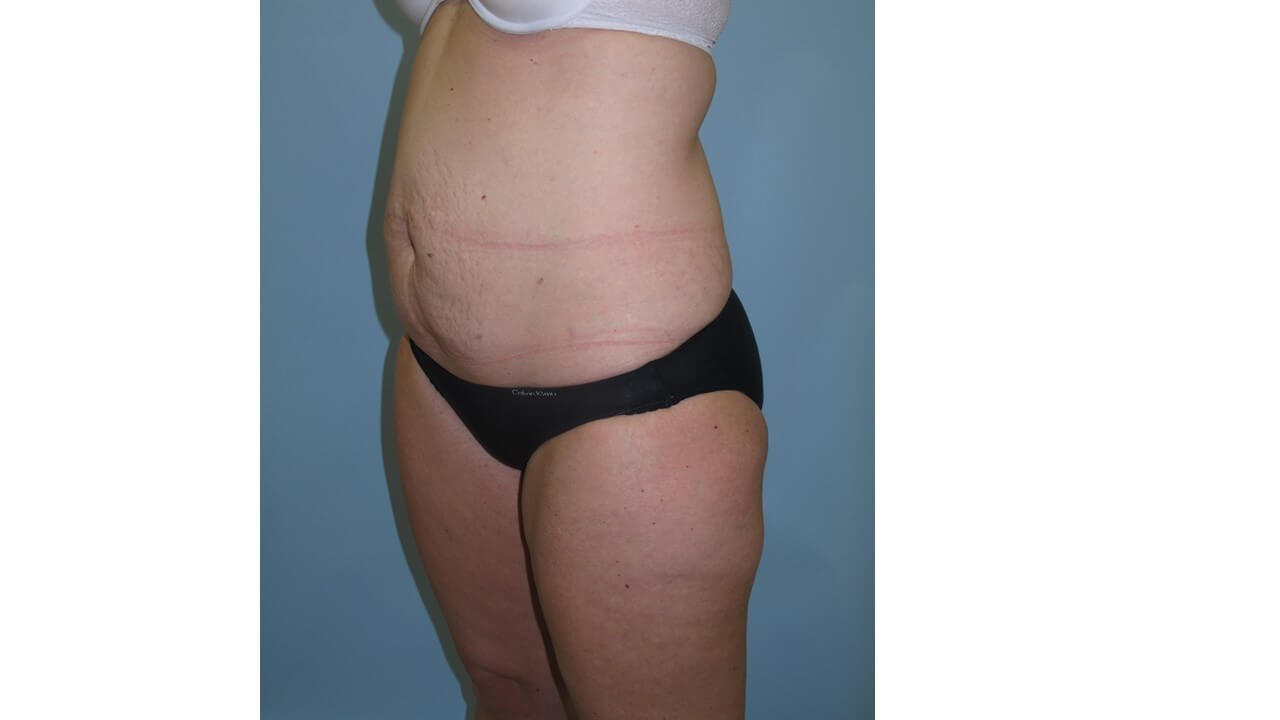 UltraShape Power & VelaShape Before (Oblique View)