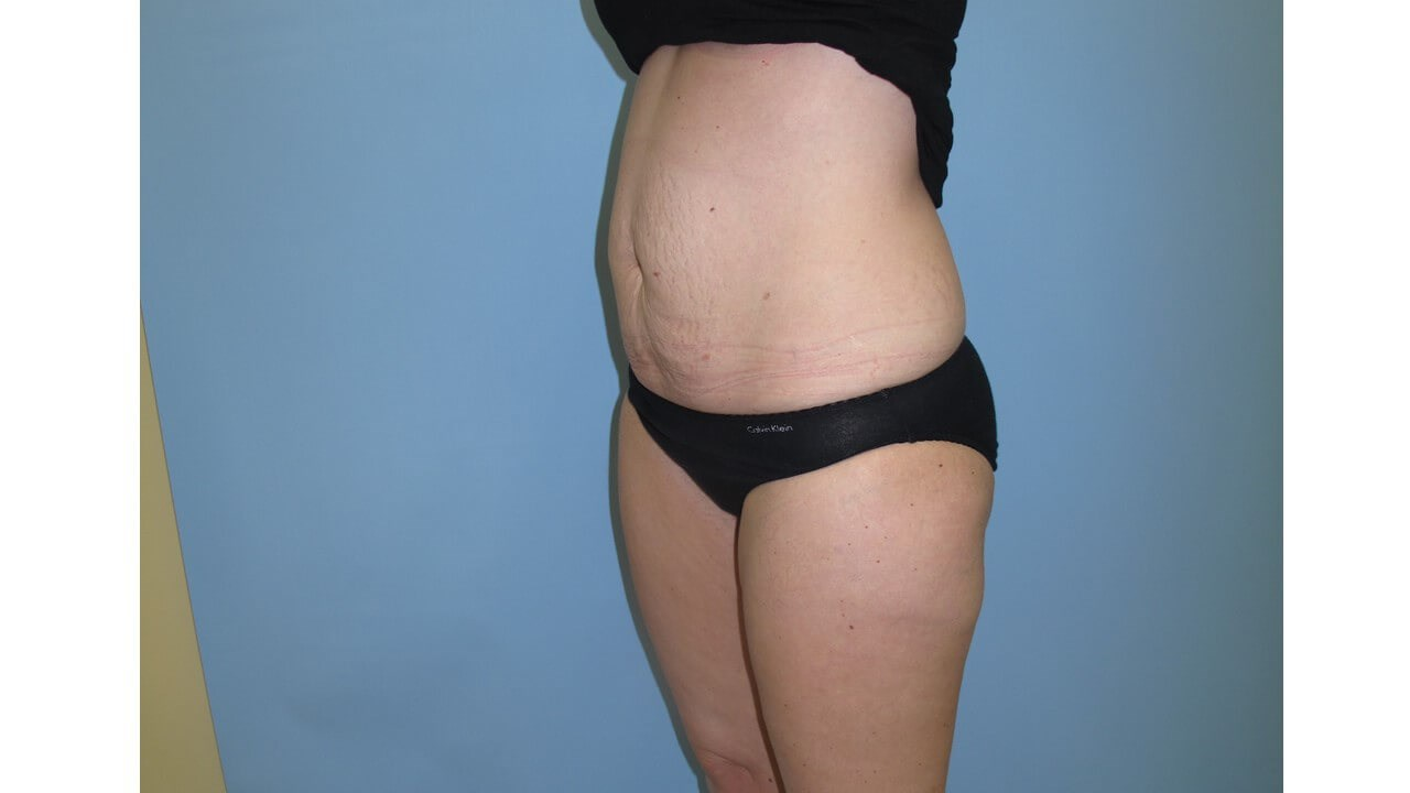 UltraShape Power & VelaShape After (Oblique View)