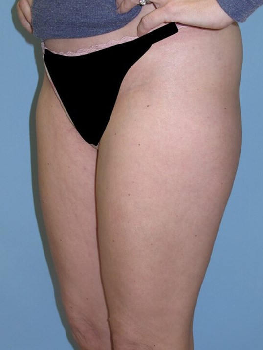 VelaShape III Before