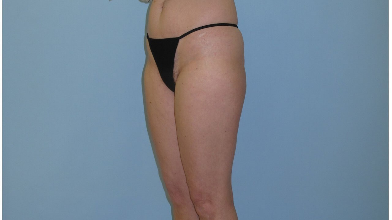 VelaShape III After