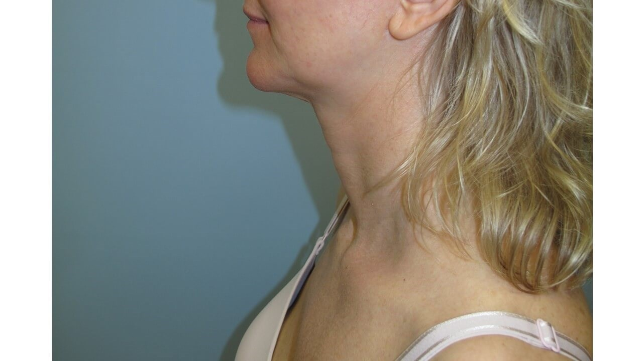 VelaShape III for the neck After
