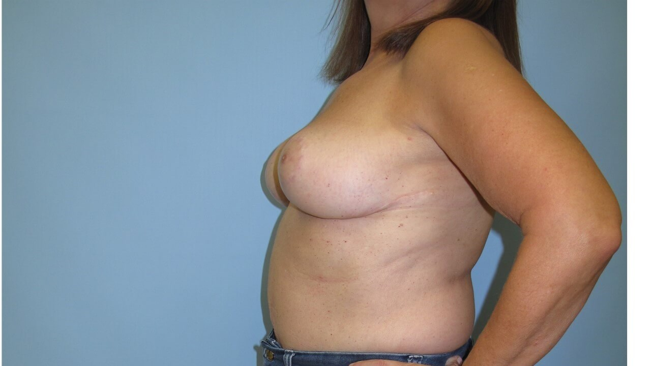 Reduction Mammoplasty After