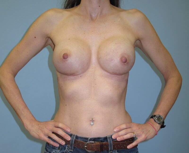 Breast Reconstruction After (Front)