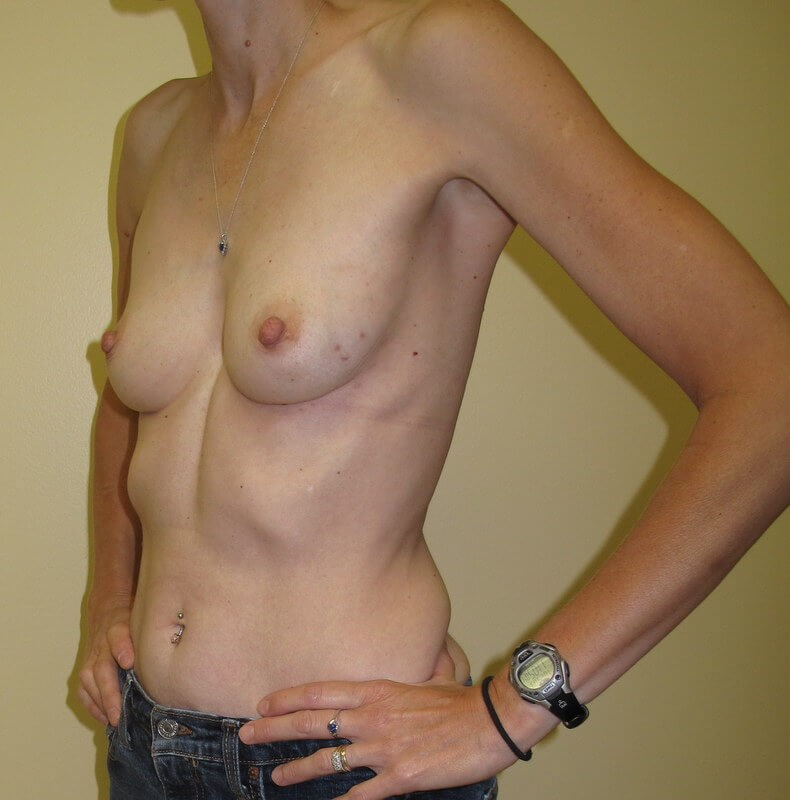 Breast Reconstruction Before (Oblique View)