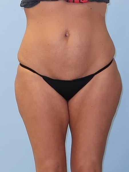 UltraShape Power/VelaShape III After (Front view)