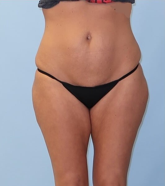 UltraShape Power & VelaShape After (Front view)