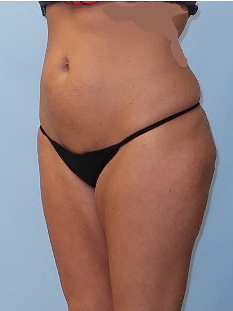UltraShape Power/VelaShape III After (Oblique View)