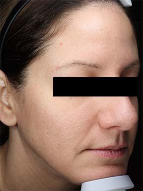 Chemical Peel After