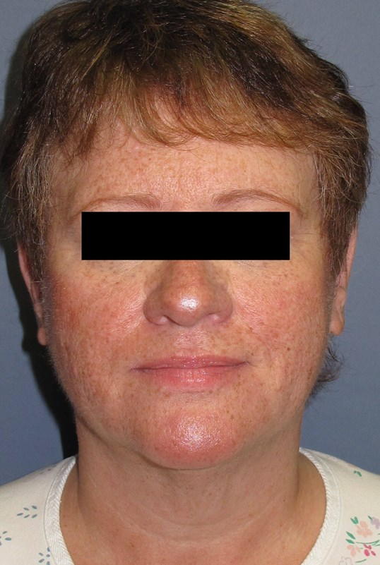 Face lift & Neck lift Before (Front)