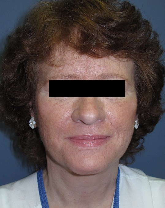 Face lift & Neck lift After (Front)