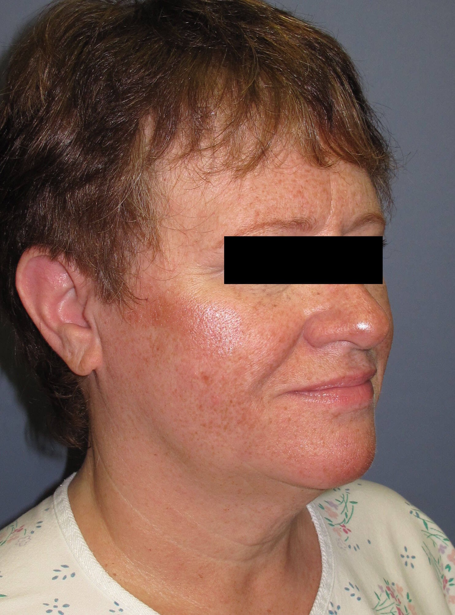 Face lift & Neck lift Before (Oblique View)
