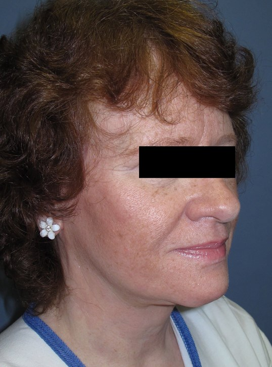 Face lift & Neck lift After (Oblique View)