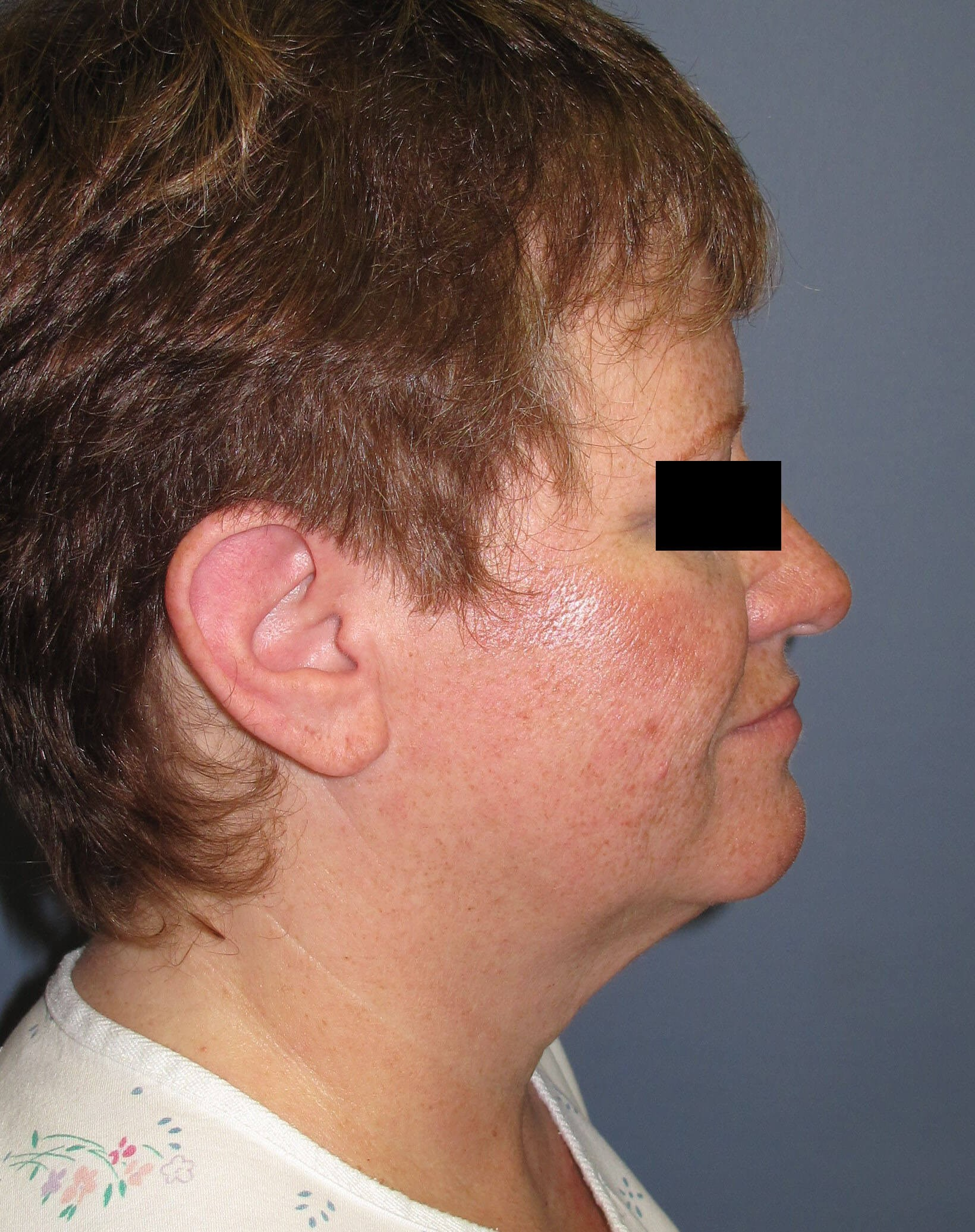 Face lift & Neck lift Before (Side View)