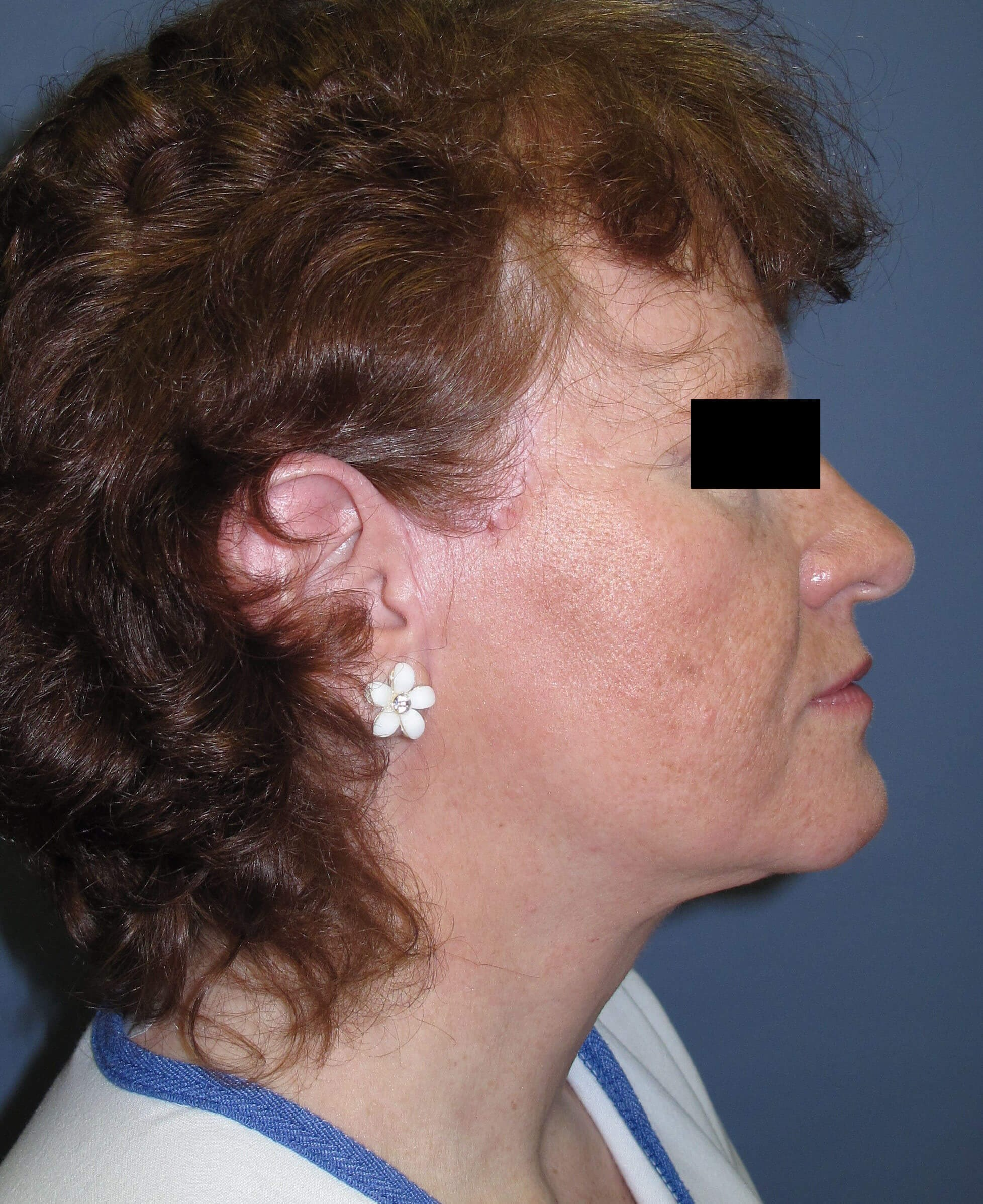 Face lift & Neck lift After (Side View)