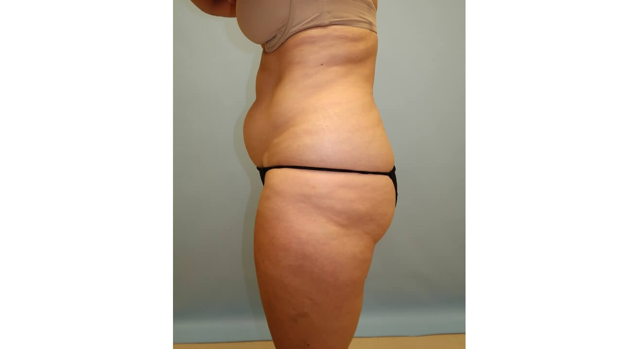 UltraShape Power/VelaShape III Before (Side View)