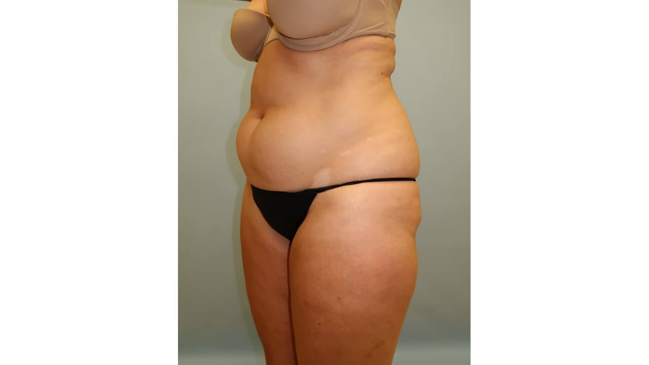 UltraShape Power/VelaShape III Before (Oblique View)
