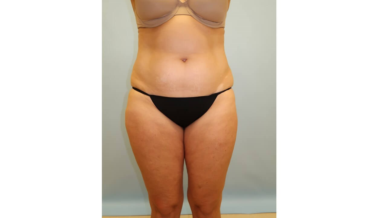 UltraShape Power/VelaShape III Before (Frontal view)