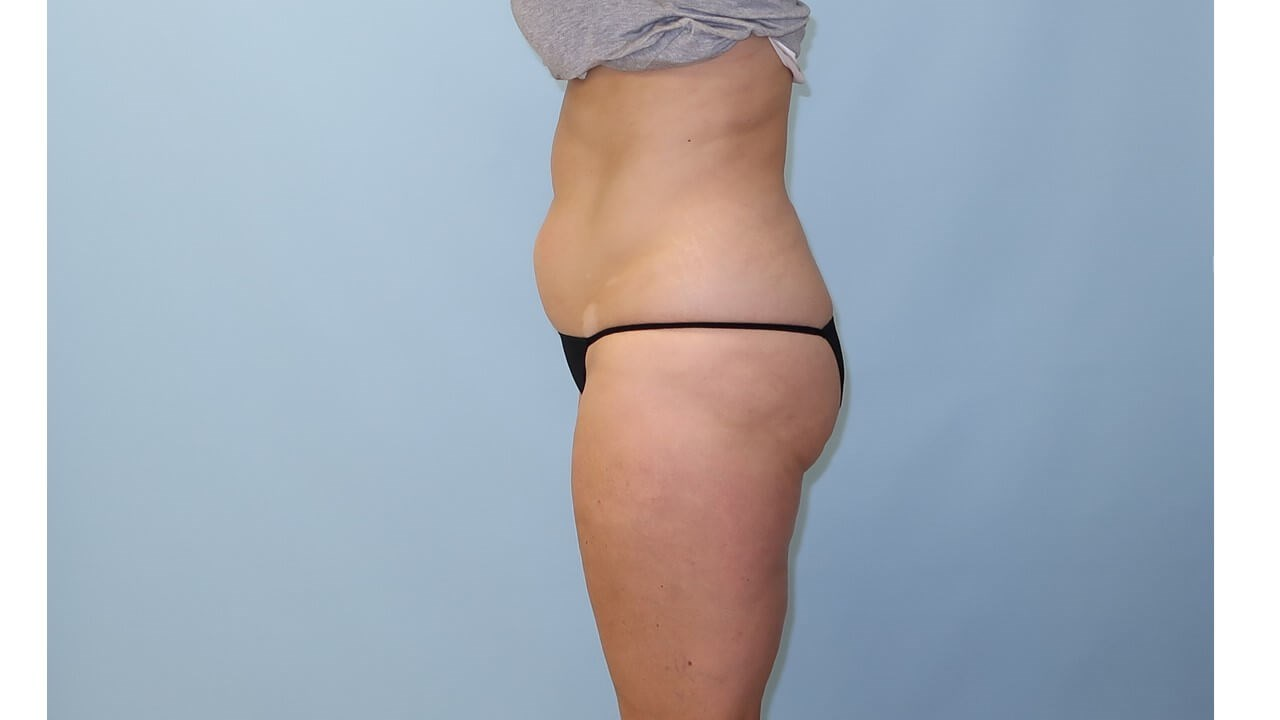 UltraShape Power/VelaShape III After (Side View)
