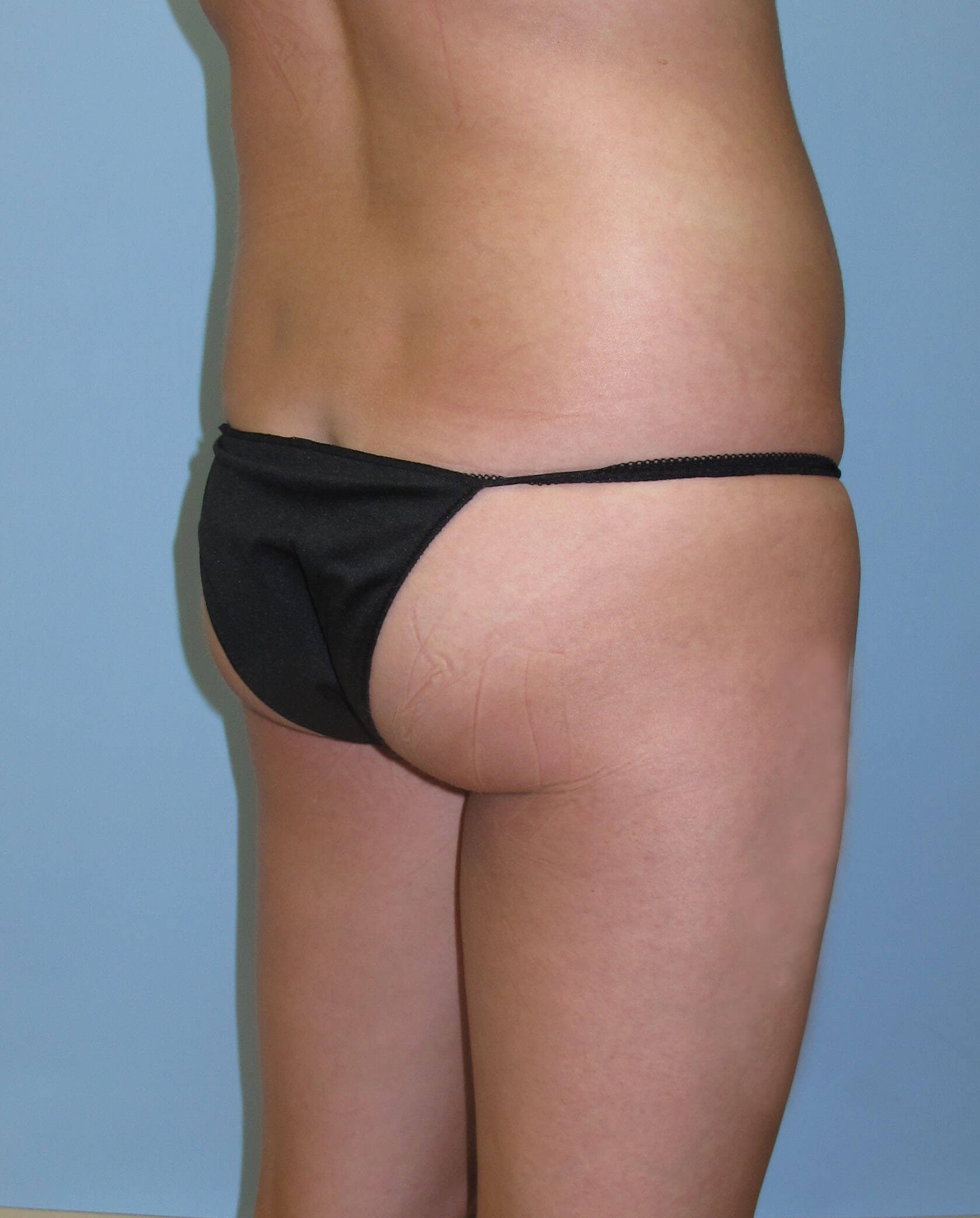 Brazilian Butt Lift Before (Oblique View)