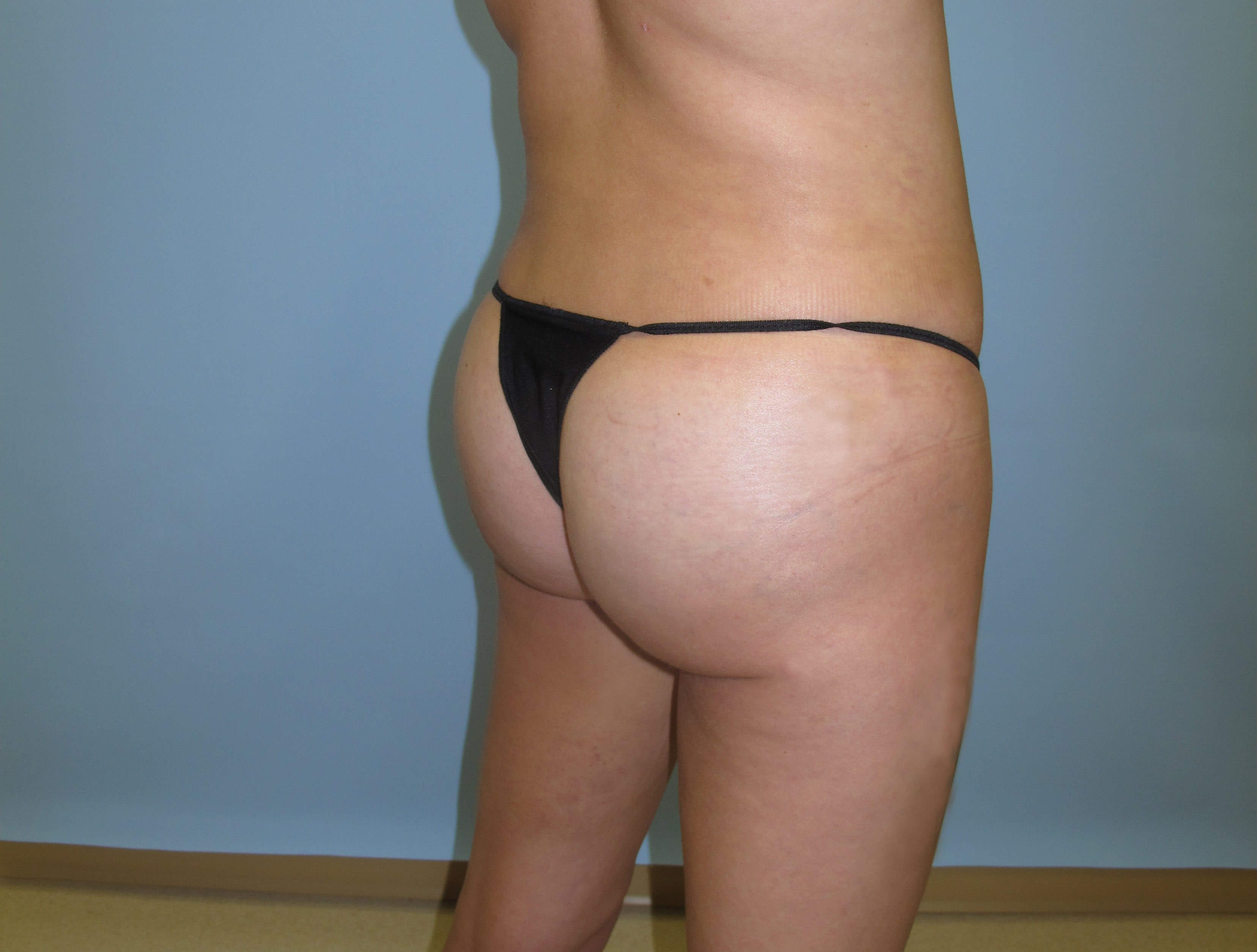 Brazilian Butt Lift After (Oblique View)