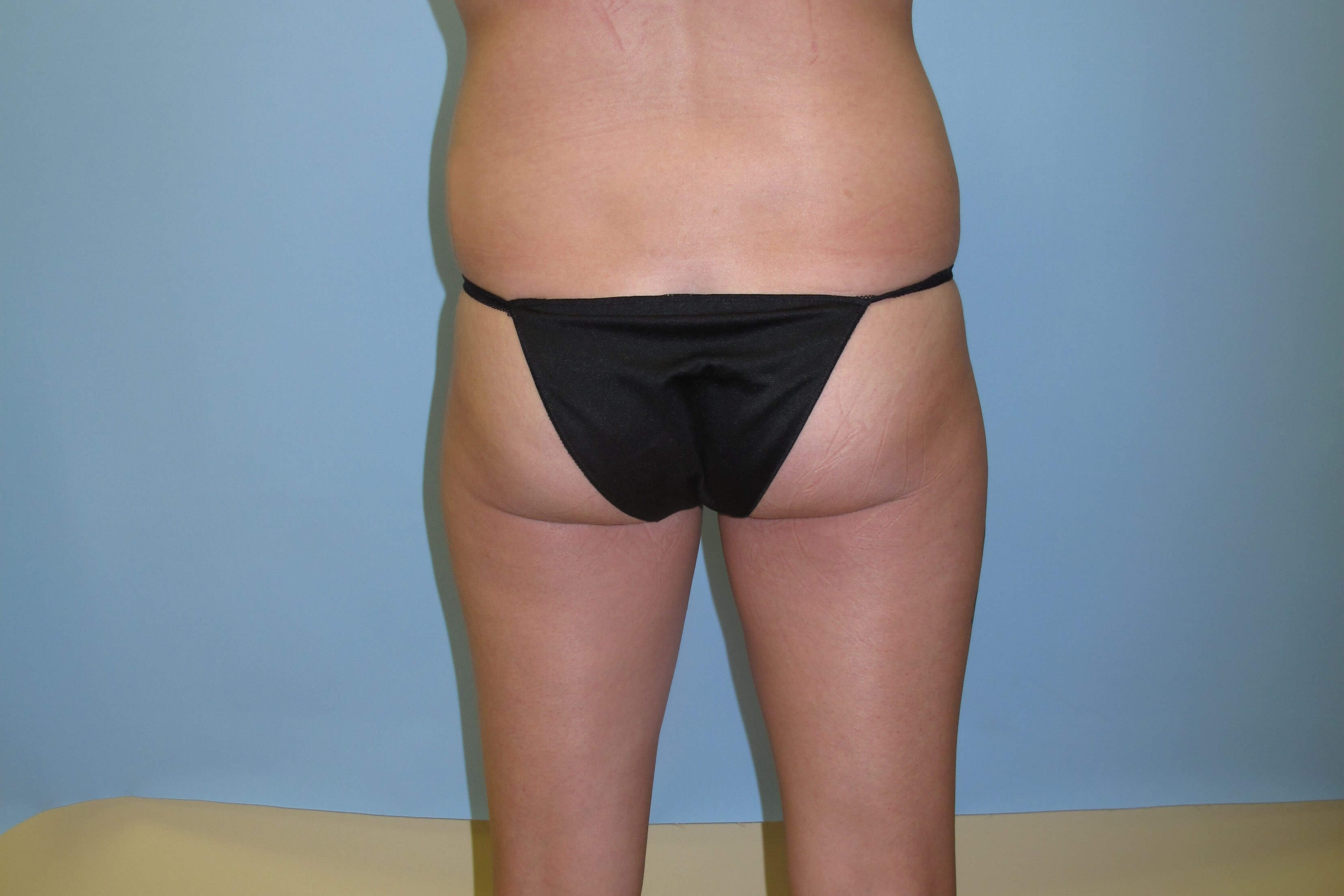Brazilian Butt Lift Before (posterior)