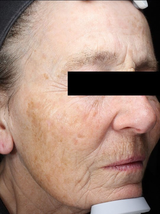 Chemical peel medium depth Before (Front)