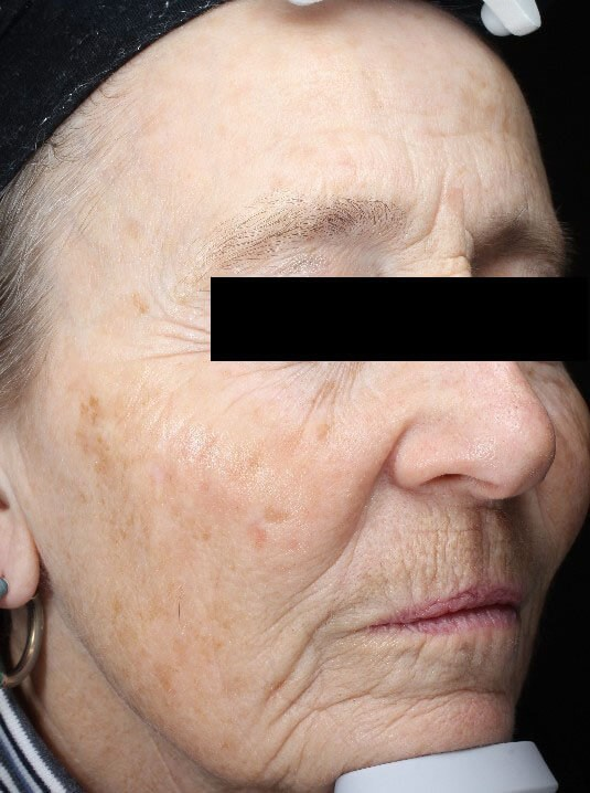 Chemical peel medium depth After (Front)