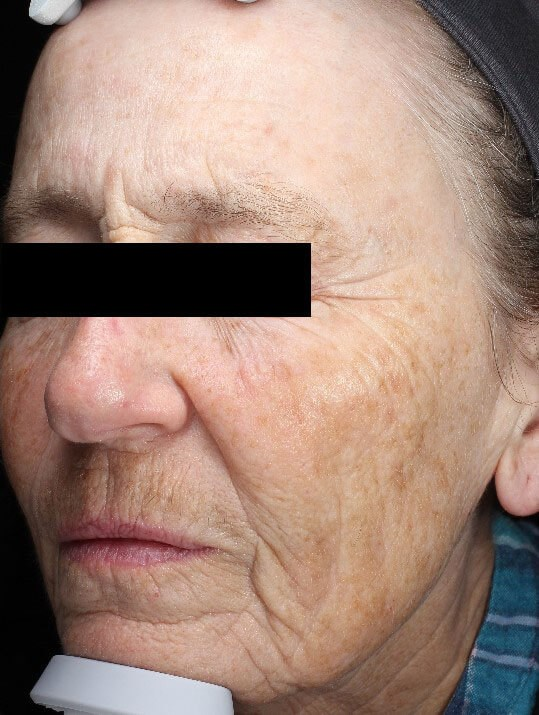 Chemical peel medium depth Before (Oblique View)