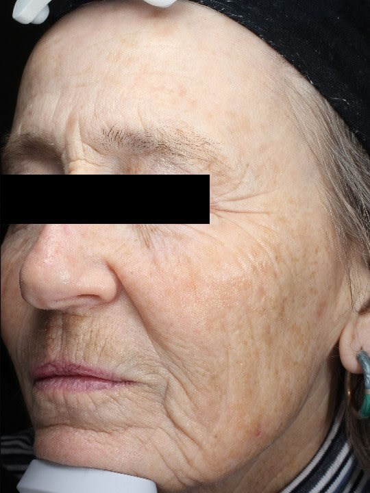 Chemical peel medium depth After (Oblique View)