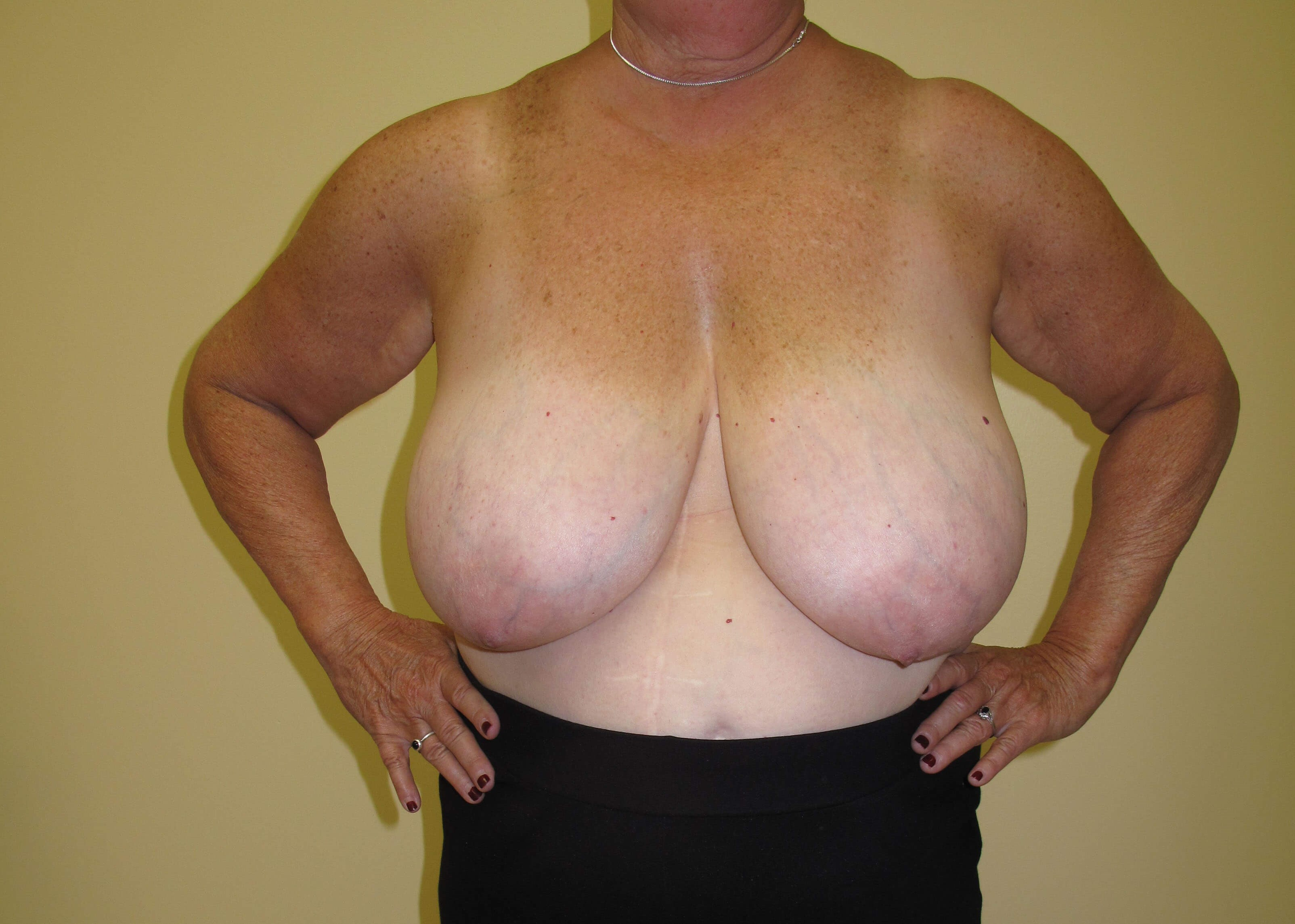 Breast Reduction Before (Front)