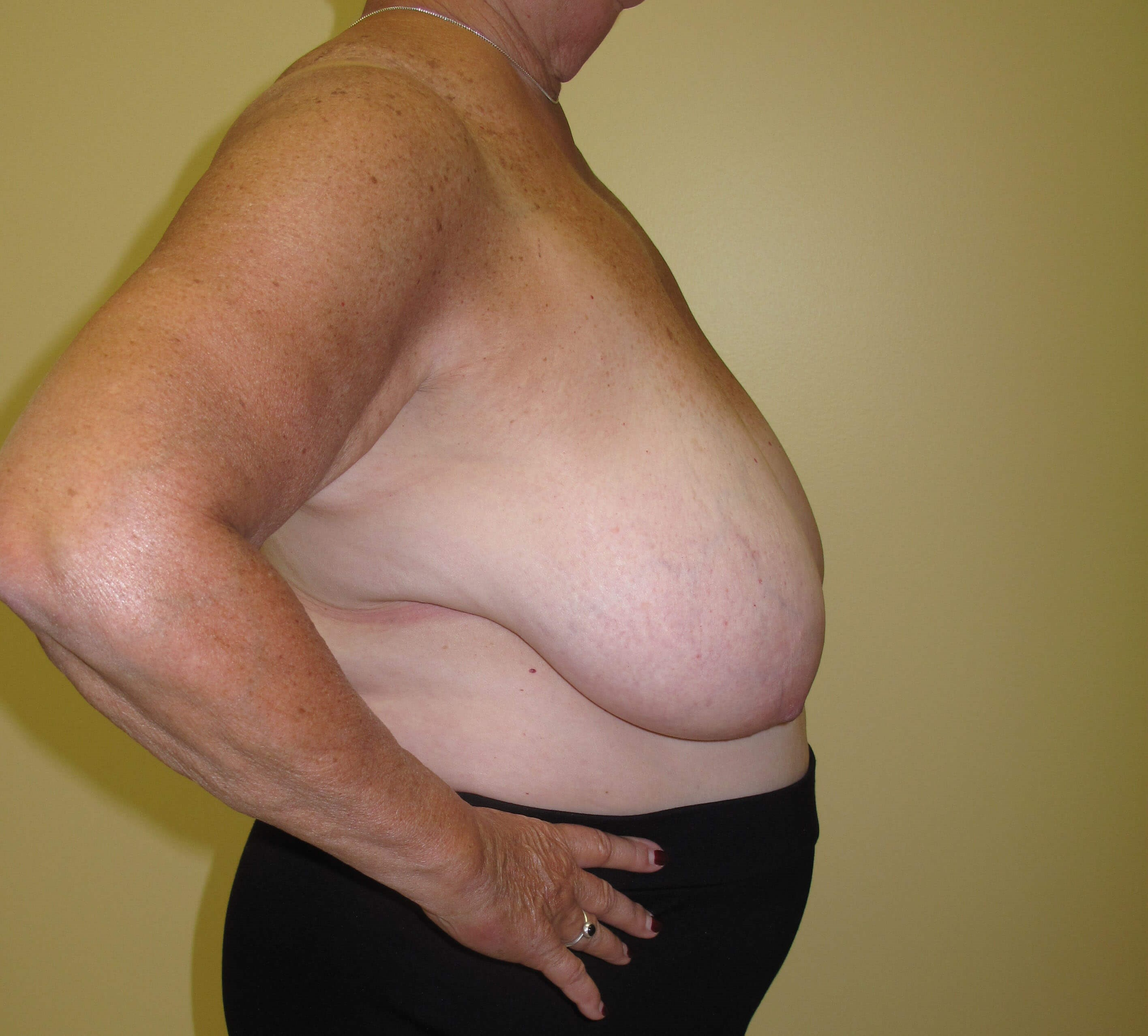 Breast Reduction Before (Side View)