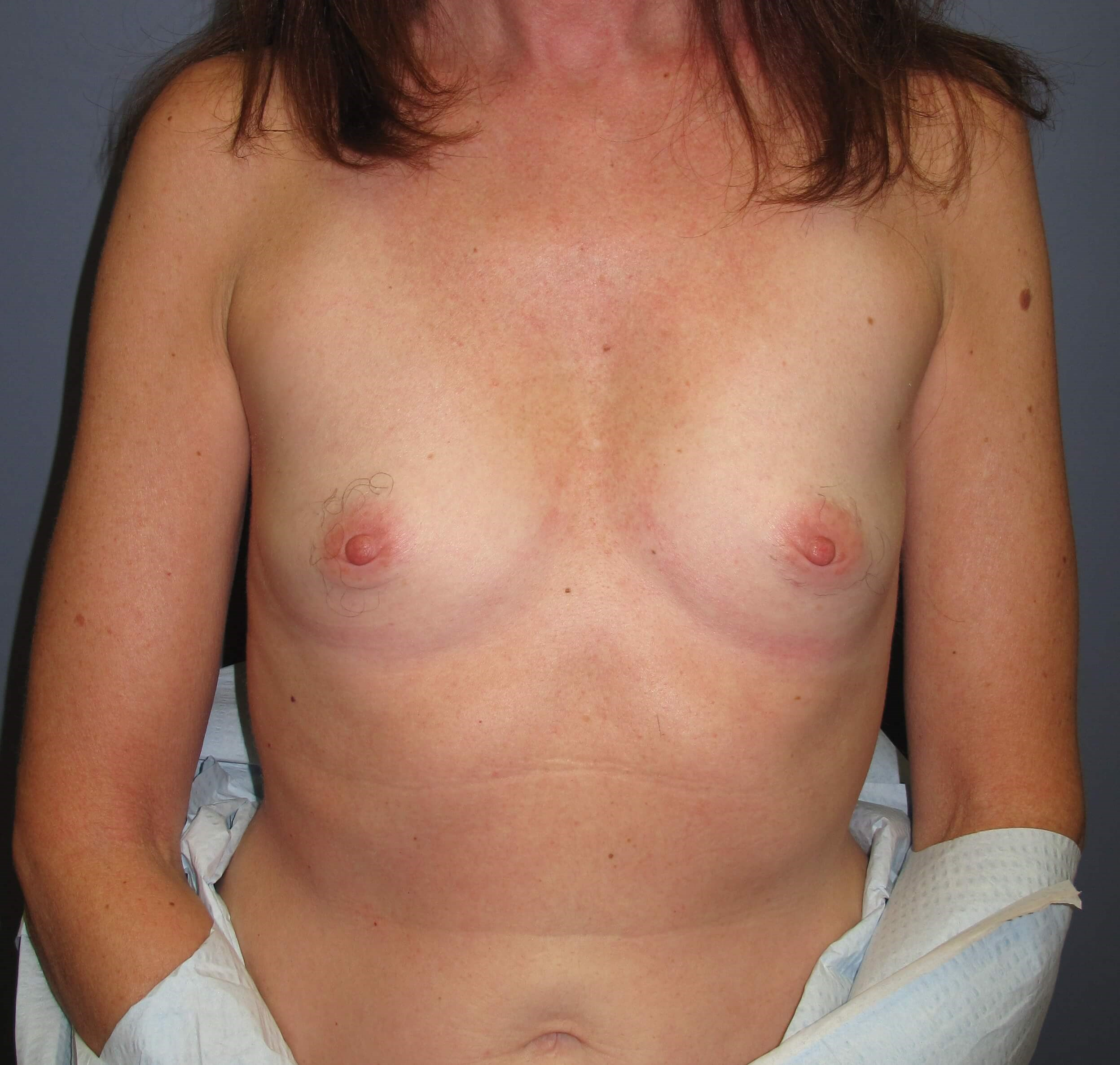 Breast Reconstruction Before (Front)