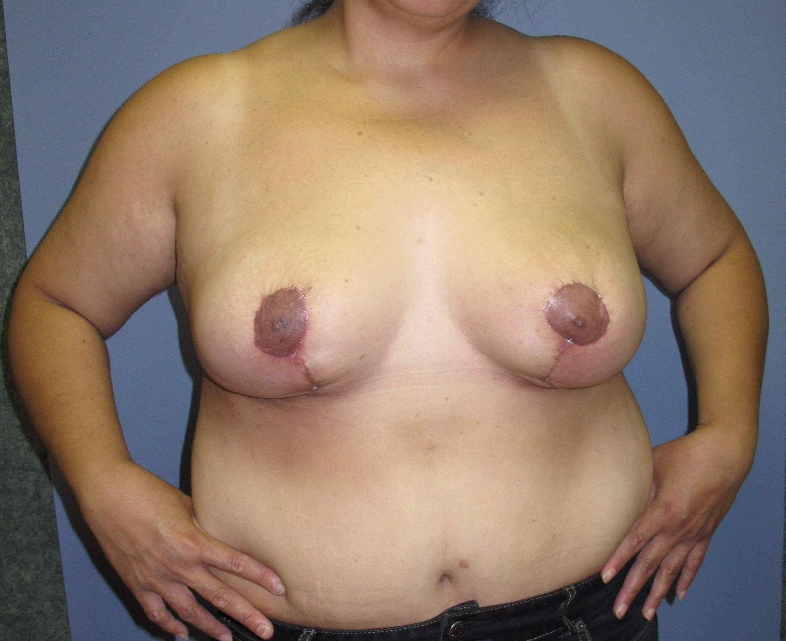Breast Reduction After (Front)