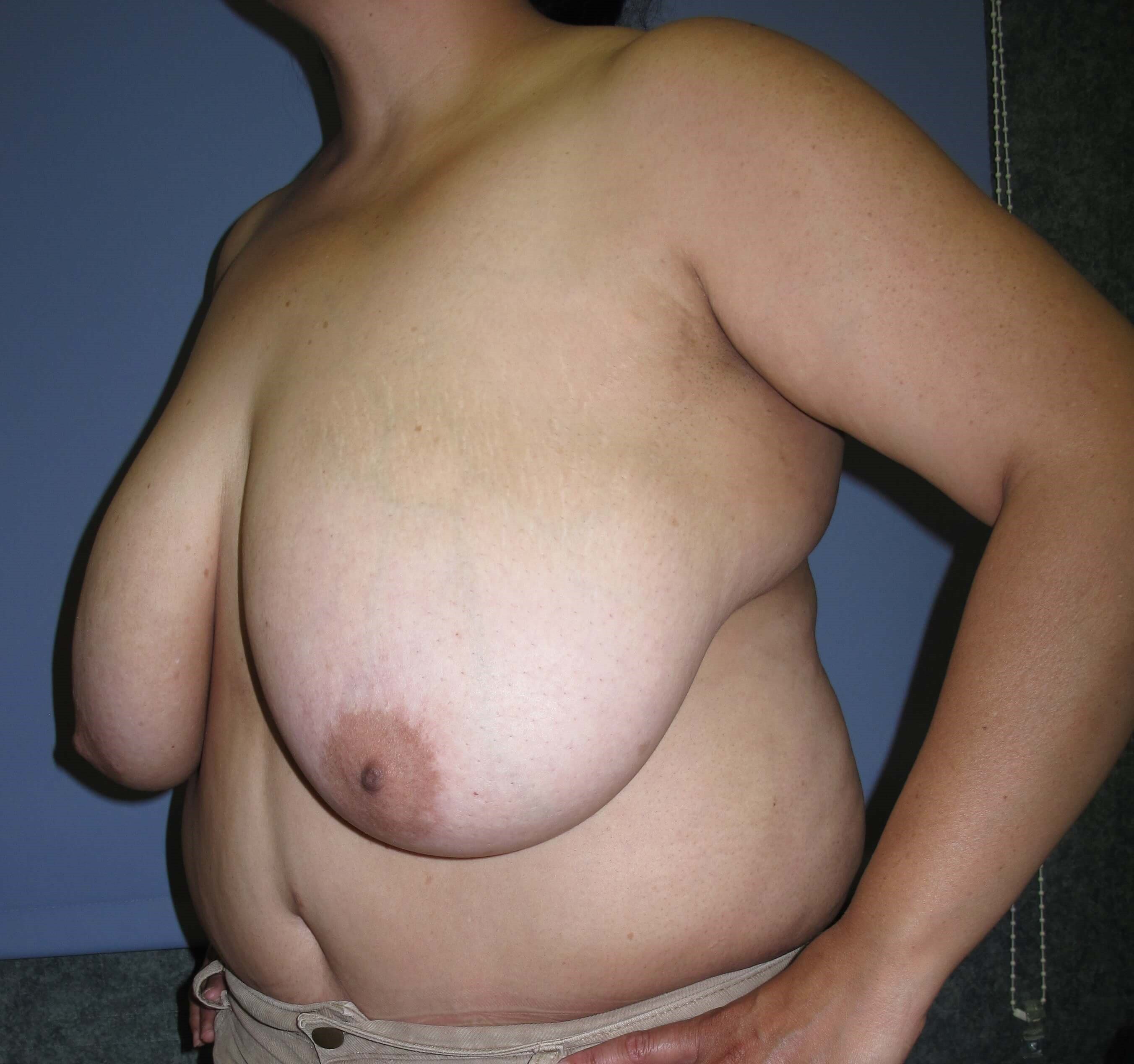 Breast Reduction Before (Oblique View)