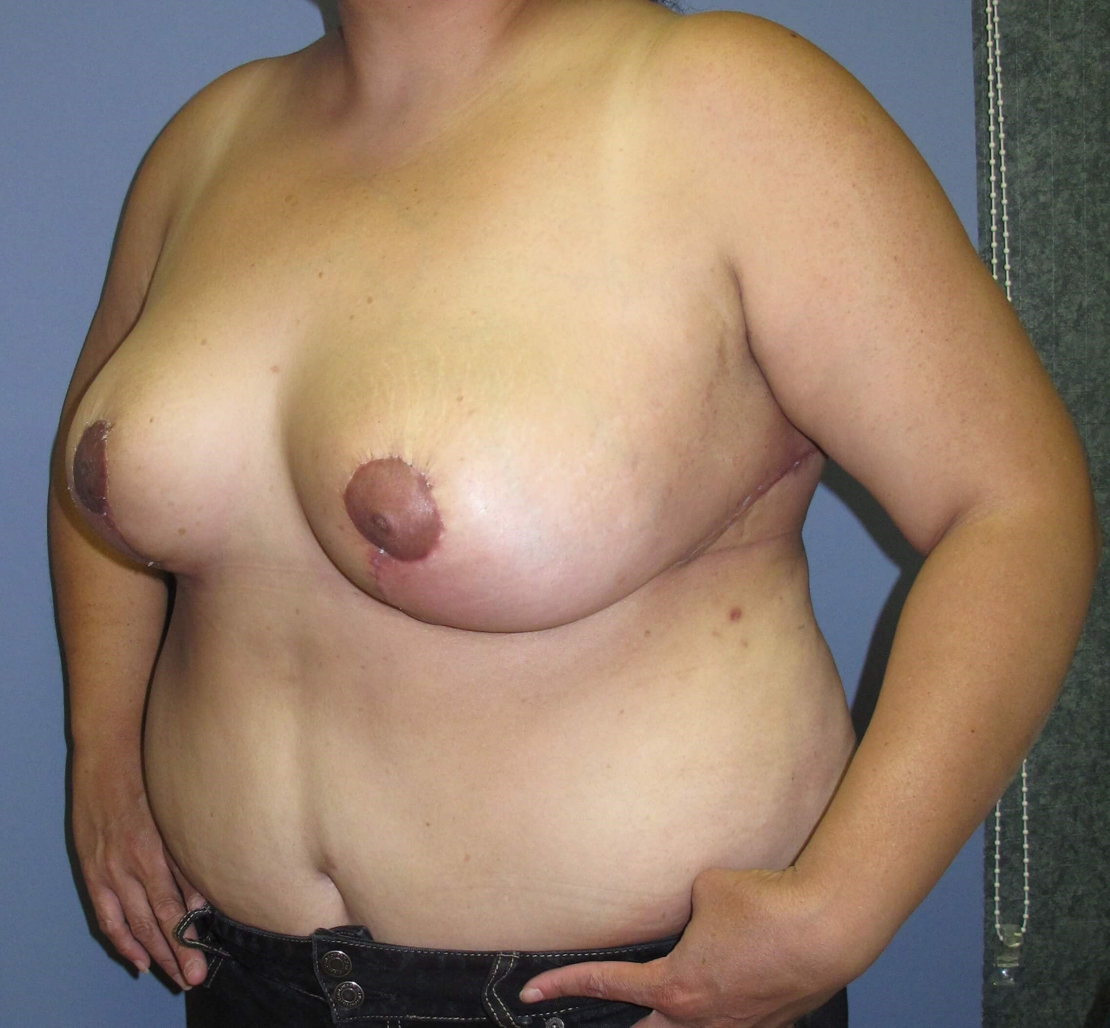 Breast Reduction After (Oblique View)