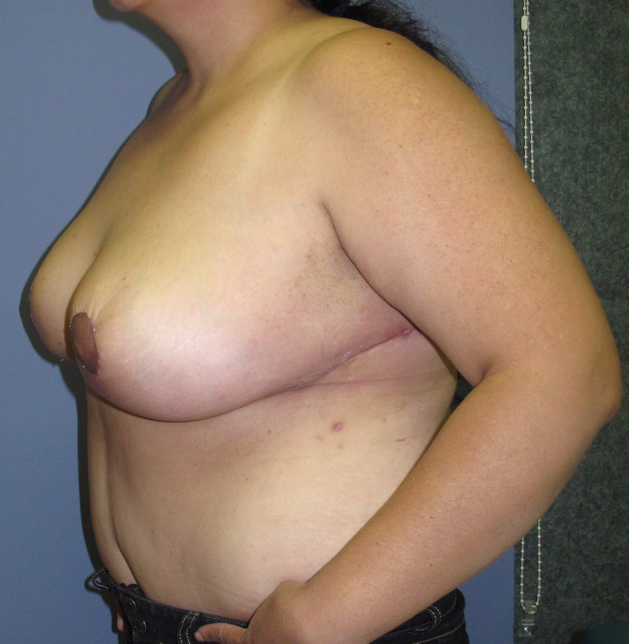 Breast Reduction After (Side View)