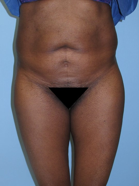 Liposuction Before (Front)