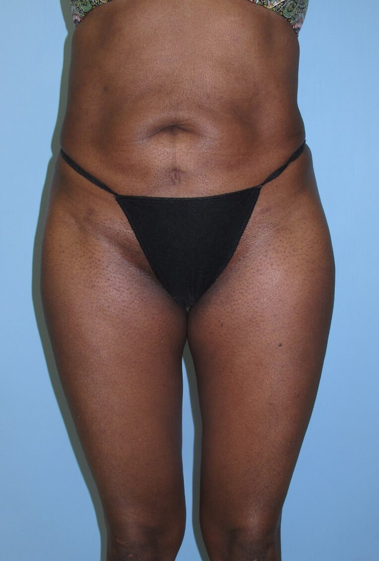 Liposuction After (Front)