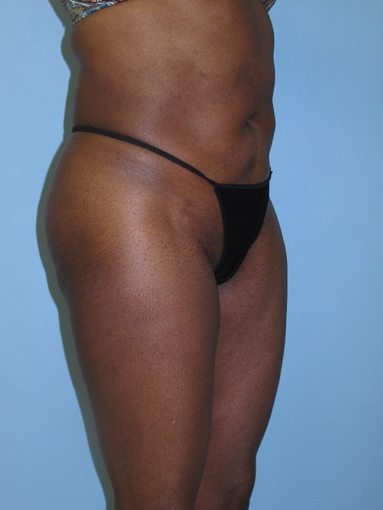 Liposuction After (Oblique View)