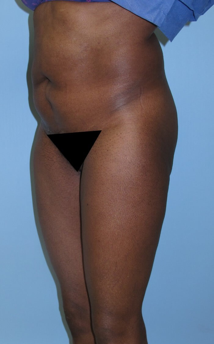 Liposuction Before (Oblique View)