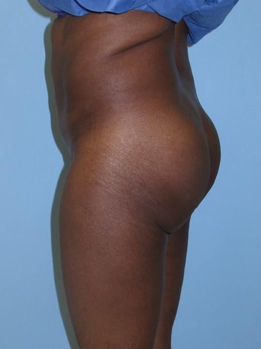 Liposuction Before (Side View)