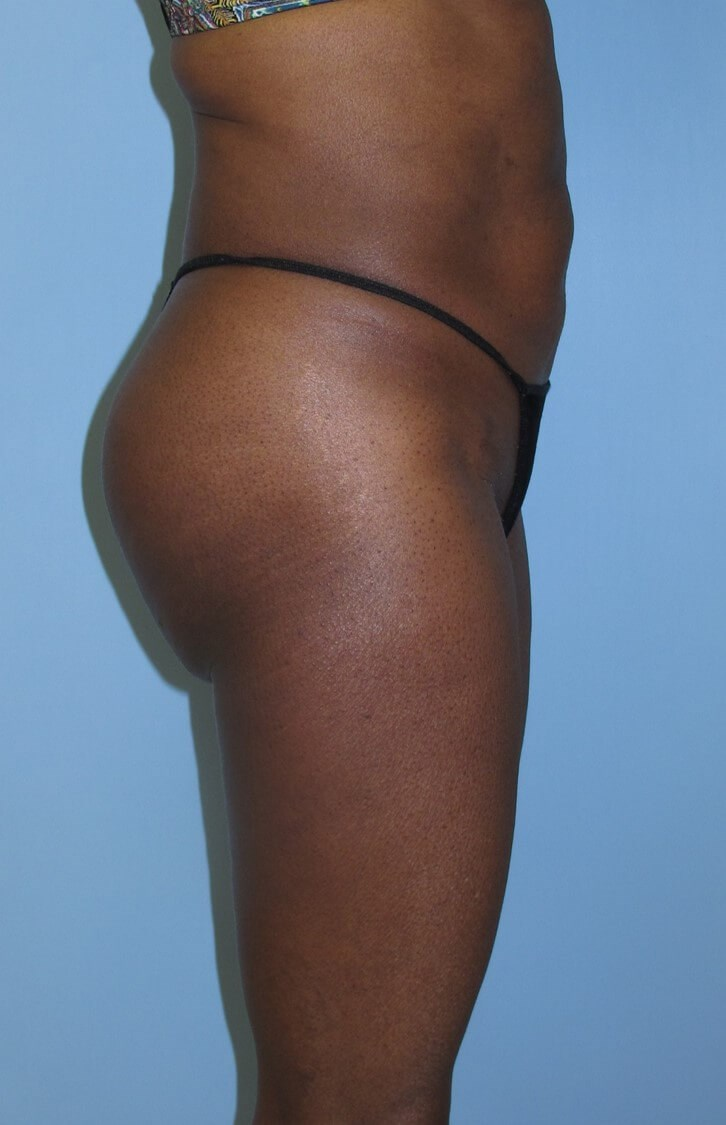 Liposuction After (Side View)