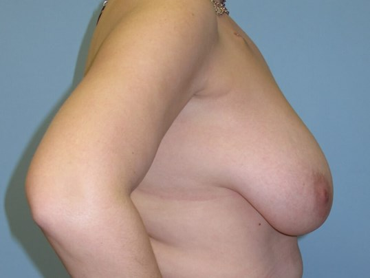 Breast Reconstruction Before (Side View)