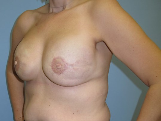 Breast Reconstruction After (Oblique View)