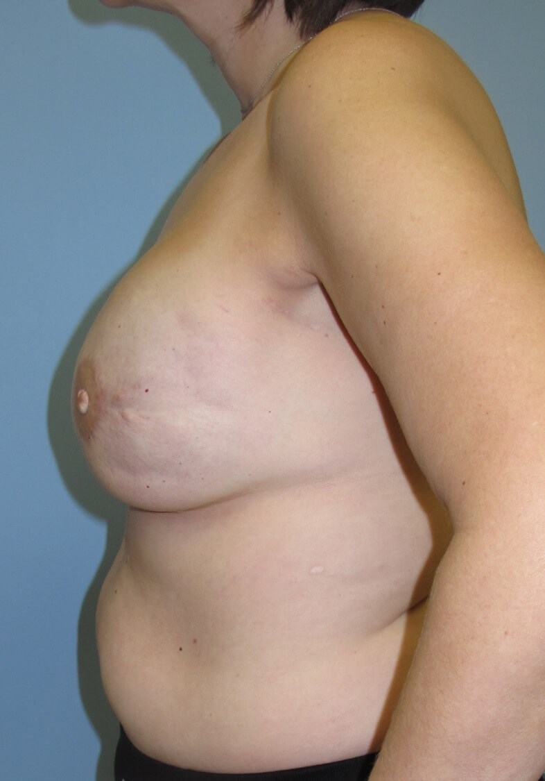Breast Reconstruction After (Side View)